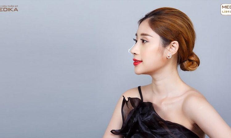 Câu chuyện thật: Lột xác hoàn toàn nhờ nâng mũi S line của cô nàng 9x - Tại Nangmuislinedep.com.vn