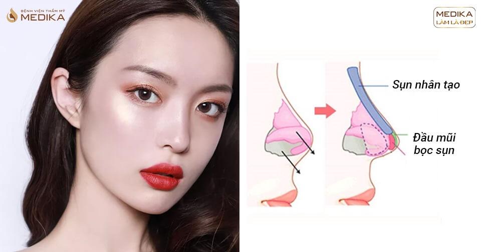 Hiểu đúng về kĩ thuật nâng mũi bọc sụn giải đáp từ chuyên gia - Tại nangmuislinedep.com.vn