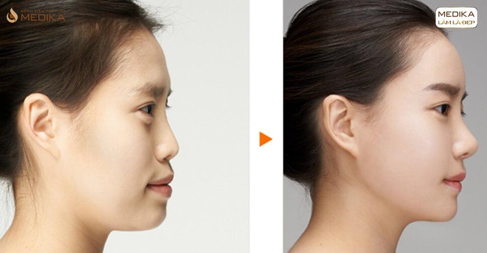 Nâng mũi bọc sụn giải cứu chiếc mũi kém xinh nhanh chóng - Tại nangmuislinedep.com.vn