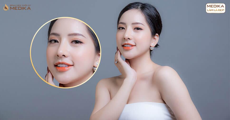 Nâng mũi sụn sườn liệu đã là giải pháp chỉnh sửa mũi tốt nhất - Ở Nangmuislinedep.com.vn