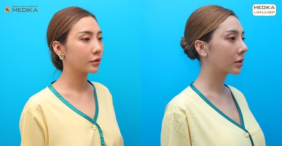 Nâng mũi sụn sườn liệu đã là giải pháp chỉnh sửa mũi tốt nhất - Tại Nangmuislinedep.com.vn