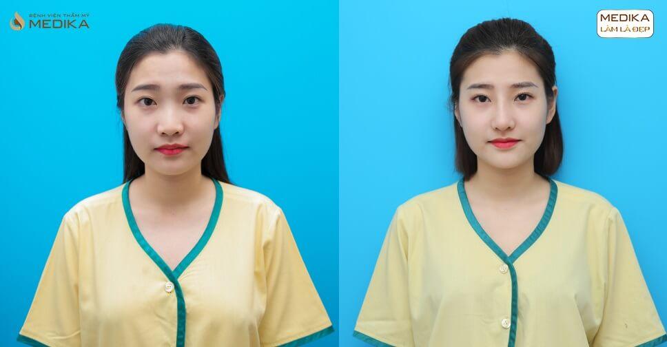 Nâng mũi sụn tự thân và chia sẻ của chuyên gia - Ở Nangmuislinedep.com.vn