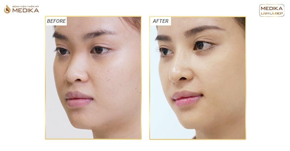 Thực hư câu chuyện nâng mũi sụn sườn trở thành hot trend thẩm mỹ - Tại nangmuislinedep.com.vn