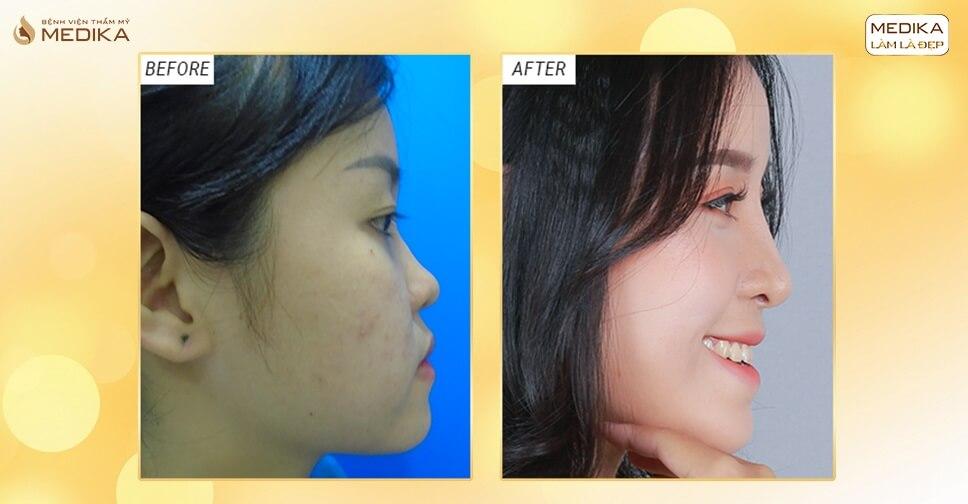 Vì sao chênh lệch giá nâng mũi truyền thống và nâng mũi bằng sụn tự thân? - Nangmuislinedep.com.vn
