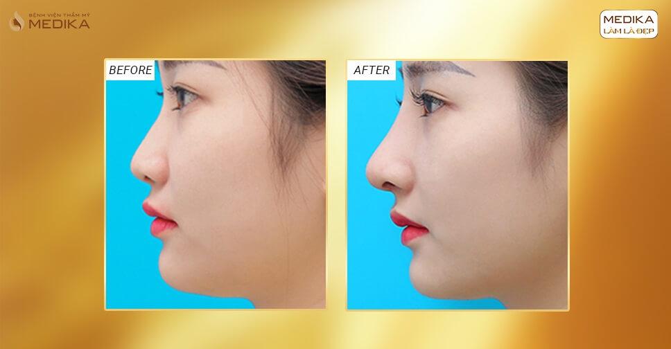 Chuyên gia chia sẻ những điều nên biết khi nâng mũi sụn sườn - Nangmuislinedep.com.vn
