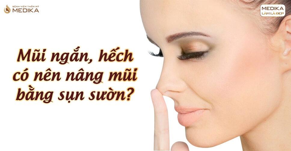 Mũi ngắn và hếch có nên nâng mũi bằng sụn sườn - Nangmuislinedep.com.vn