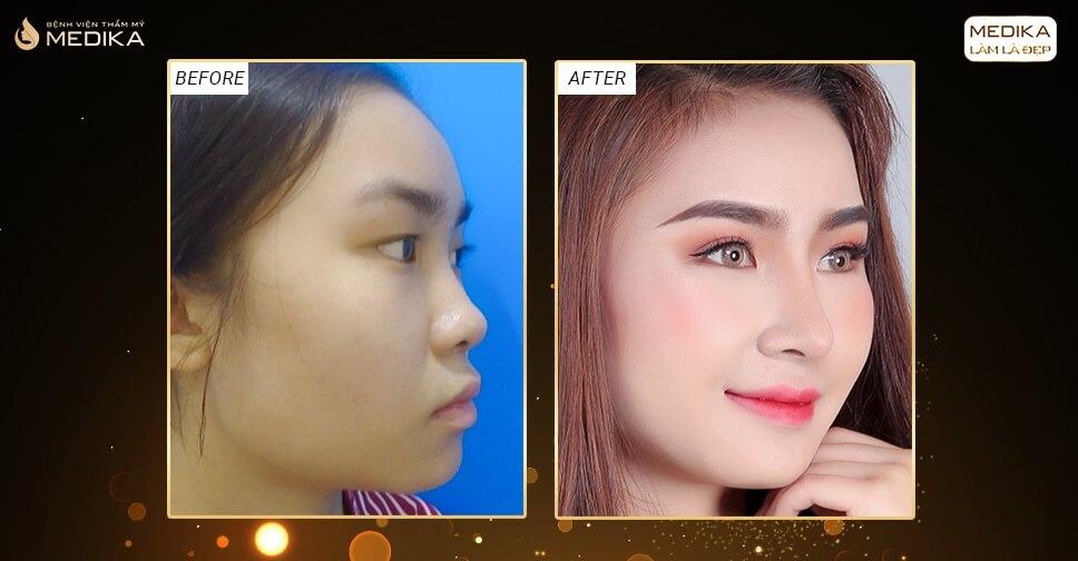 Mũi ngắn và hếch có nên nâng mũi sụn sườn - Nangmuislinedep.com.vn