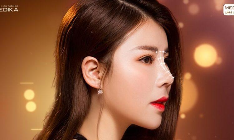 Nâng mũi S line thay đổi diện mạo phái đẹp - Ở nangmuislinedep.com.vn