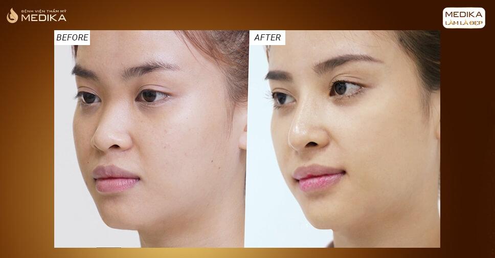 Nâng mũi S line thay đổi diện mạo phái đẹp - Tại nangmuislinedep.com.vn