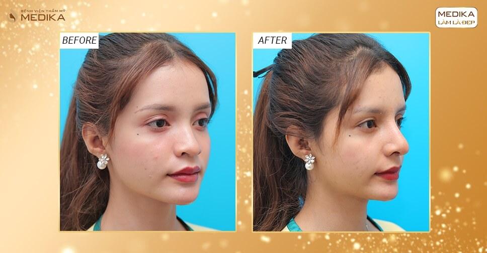 Nâng mũi sụn sườn - Chuẩn mũi đẹp hài hòa tự nhiên - Nangmuislinedep.com.vn