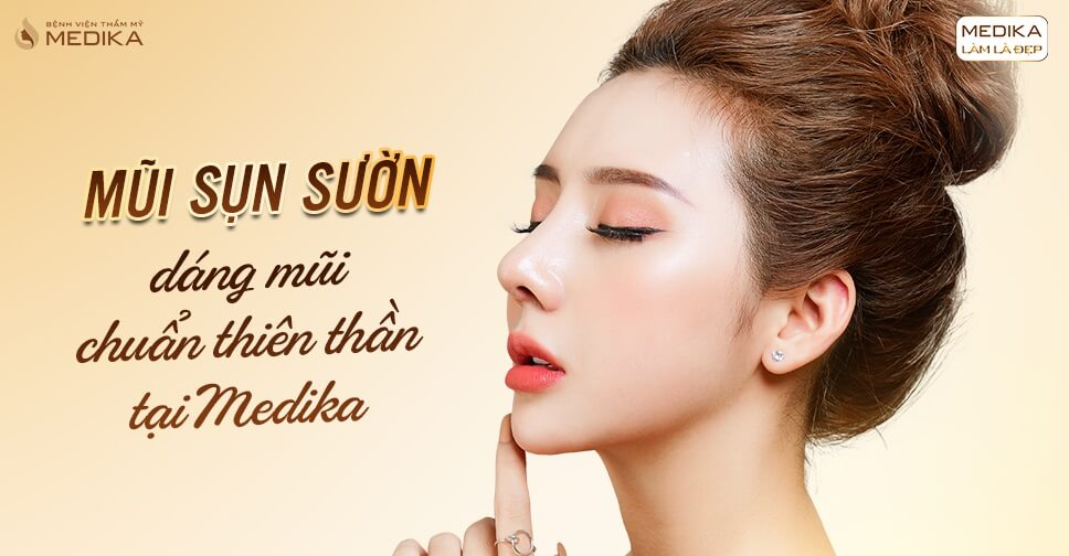 Nâng mũi sụn sườn - Dáng mũi chuẩn đẹp chuẩn an toàn - Nangmuislinedep.com.vn