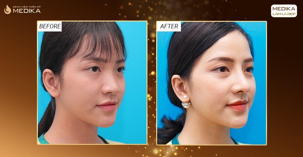 Nâng mũi sụn sườn - Mũi đẹp an toàn - Nangmuislinedep.com.vn