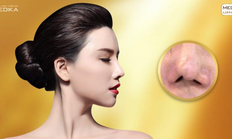 Nâng mũi sụn tự thân vẫn tồn tại nguy cơ gây tai biến - Nangmuislinedep.com.vn