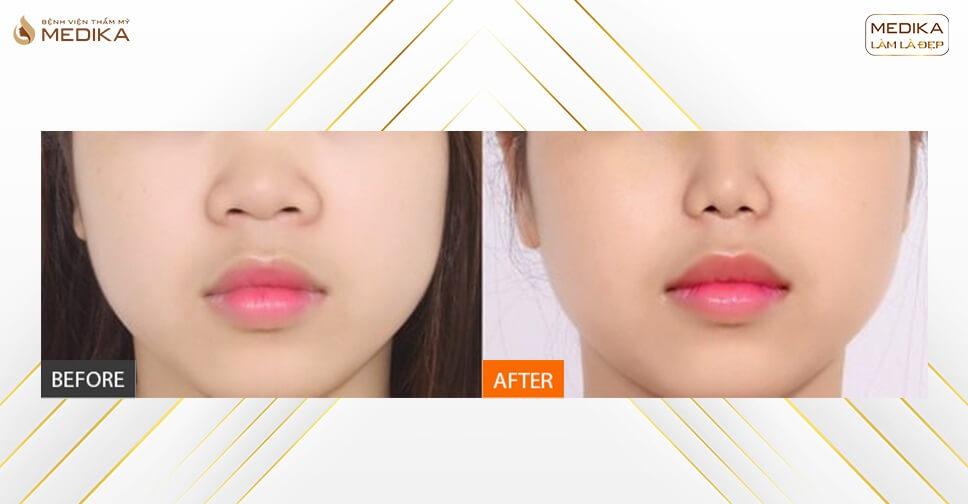 Phẫu thuật thu gọn cánh mũi - Thực hiện 1 lần chia tay mũi xấu vĩnh viễn - Nangmuislinedep.com.vn