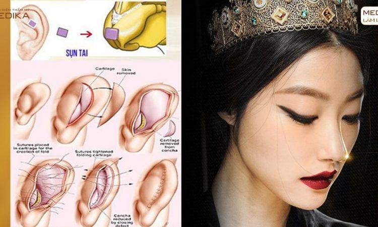 Tại sao nâng mũi cấu trúc lại hấp dẫn nhiều phái đẹp? - Nangmuislinedep.com.vn