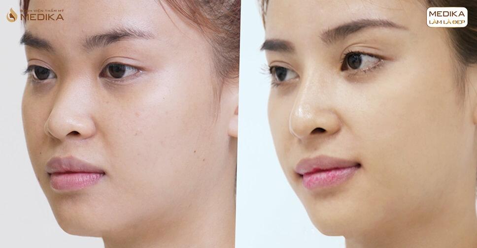 Tại sao nâng mũi cấu trúc S line lại hấp dẫn nhiều phái đẹp? - Nangmuislinedep.com.vn
