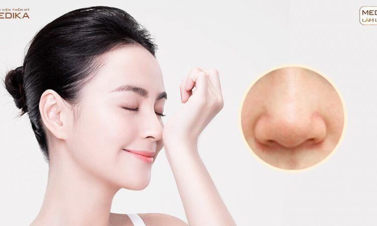 Thu gọn cánh mũi - Thực hiện 1 lần chia tay mũi xấu vĩnh viễn - Nangmuislinedep.com.vn