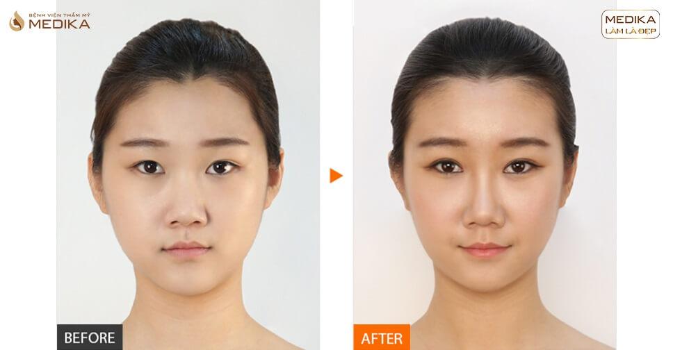 Tụt sóng khi nâng mũi bằng sụn tự thân - Nguyên nhân và cách xử trí? - Nangmuislinedep.com.vn