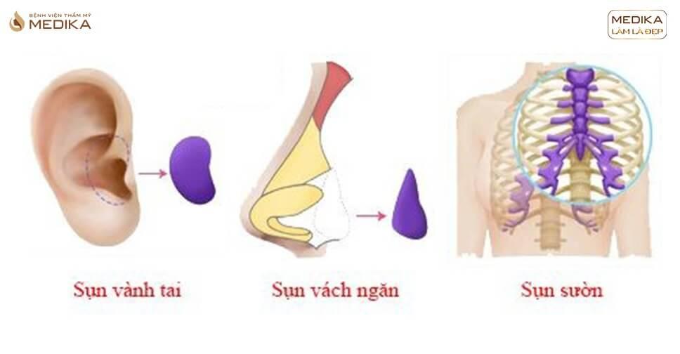 Các loại sụn phổ biến được sử dụng trong nâng mũi bằng sụn tự thân - Nangmuislinedep.com.vn