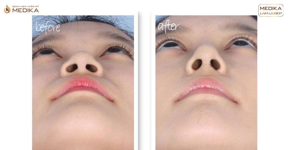 Cách phân biệt những kĩ thuật phương pháp thu gọn cánh mũi - Nangmuislinedep.com.vn