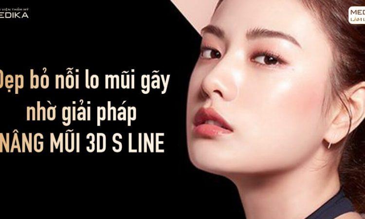 Dẹp bỏ nỗi lo mũi gãy nhờ giải pháp nâng mũi 3D S line - Nangmuislinedep.com.vn