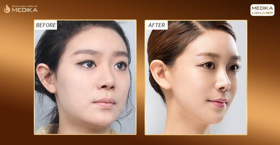 Dẹp bỏ nỗi lo mũi gãy nhờ giải pháp phẫu thuật nâng mũi 3D S line - Nangmuislinedep.com.vn