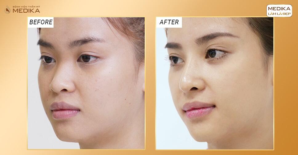 Độ tuổi nào lý tưởng để nâng mũi bọc sụn nhân tạo? - Nangmuislinedep.com.vn