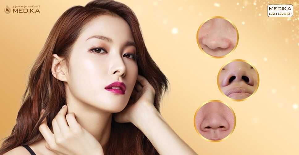 Nâng mũi S line cấu trúc là gì? - Nangmuislinedep.com.vn