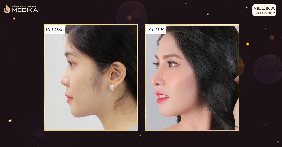 Nâng mũi sụn sườn - Dáng mũi đẹp theo thời gian - Nangmuislinedep.com.vn