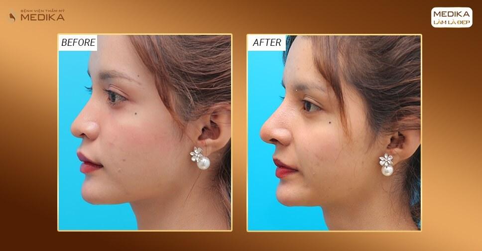 Nên ăn kiêng gì sau khi nâng mũi bằng sụn sườn? - Nangmuislinedep.com.vn