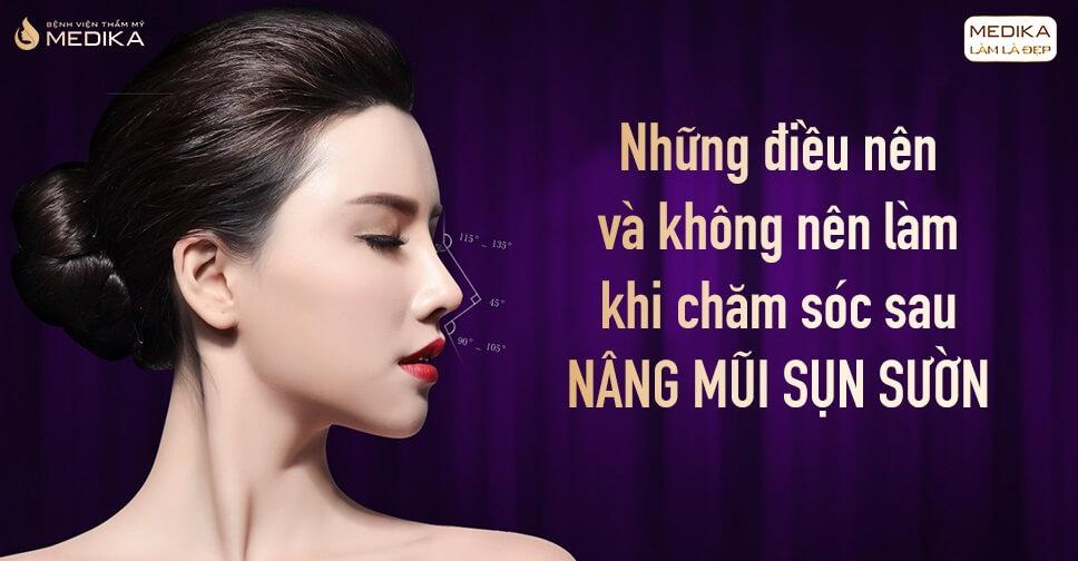 Những điều nên và không nên khi chăm sóc nâng mũi sụn sườn - Nangmuislinedep.com.vn