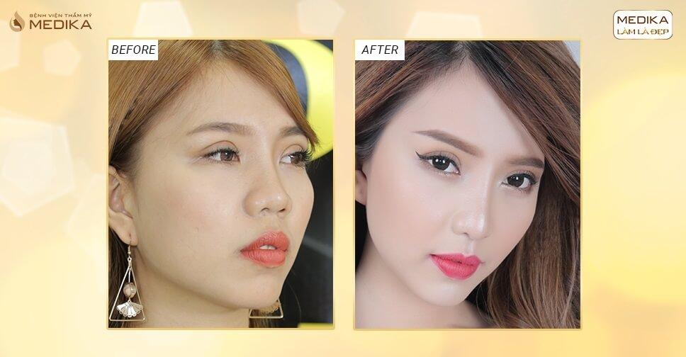 Thu nhỏ đầu mũi khắc phục đầu mũi tròn có gây mất lộc không? - Nangmuislinedep.com.vn