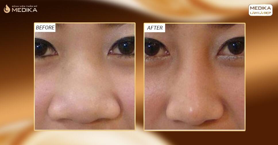 Thực hiện thu gọn cánh mũi không phẫu thuật bằng hai cách đơn giản - Nangmuislinedep.com.vn