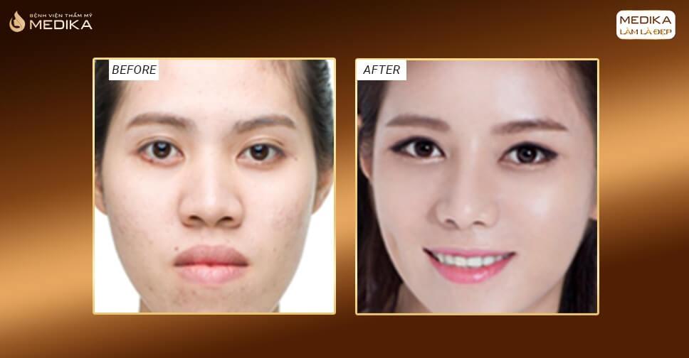 Xử lý mũi hếch đơn giản bằng phương pháp tiểu phẫu thu nhỏ đầu mũi - Nangmuislinedep.com.vn