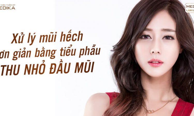 Xử lý mũi hếch đơn giản bằng tiểu phẫu thu nhỏ đầu mũi - Nangmuislinedep.com.vn