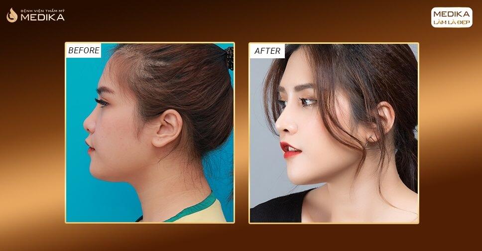 Kinh nghiệm nâng mũi 3D được khách hàng chia sẻ - Nangmuislinedep.com.vn