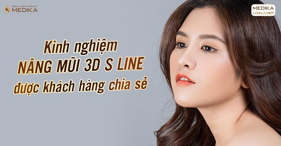 Kinh nghiệm nâng mũi 3D S line được khách hàng chia sẻ - Nangmuislinedep.com.vn