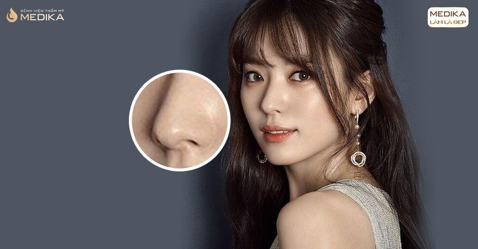 Kinh nghiệm thực hiện thu nhỏ đầu mũi được chị em chia sẻ nhiều - Nangmuislinedep.com.vn
