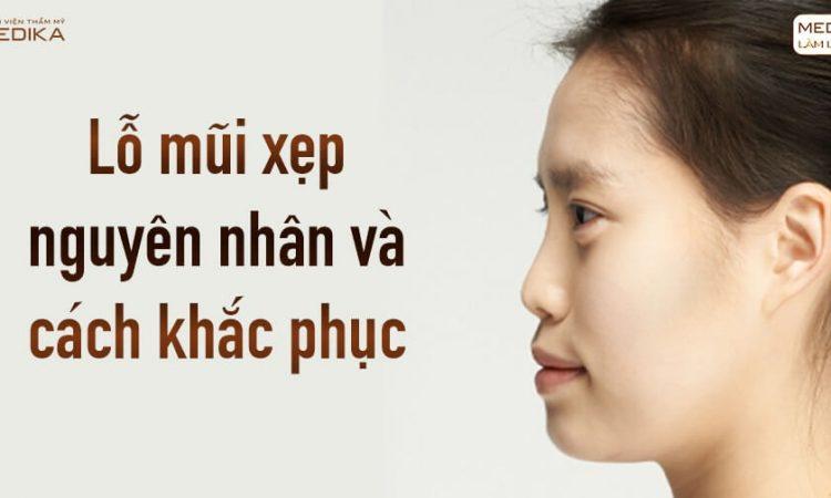 Nguyên nhân lỗ mũi xẹp - Khắc phục bằng nâng mũi sụn sườn - Nangmuislinedep.com.vn