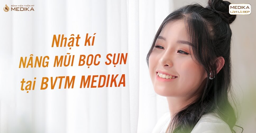 Nhật kí nâng mũi bọc sụn tại BVTM MEDIKA - Nangmuislinedep.com.vn