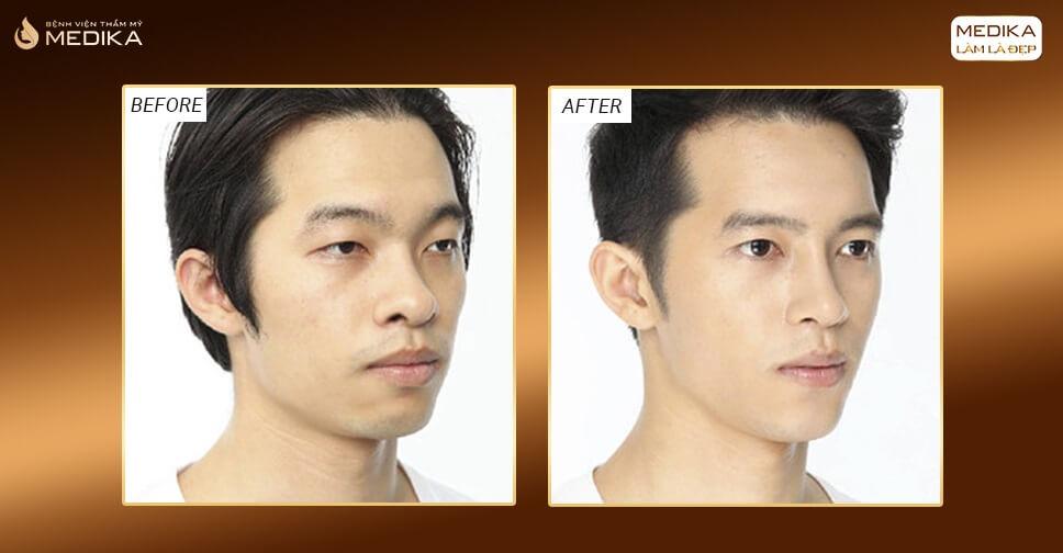 Thu gọn cánh mũi cho nam giới có gì khác so với nữ giới? - Nangmuislinedep.com.vn