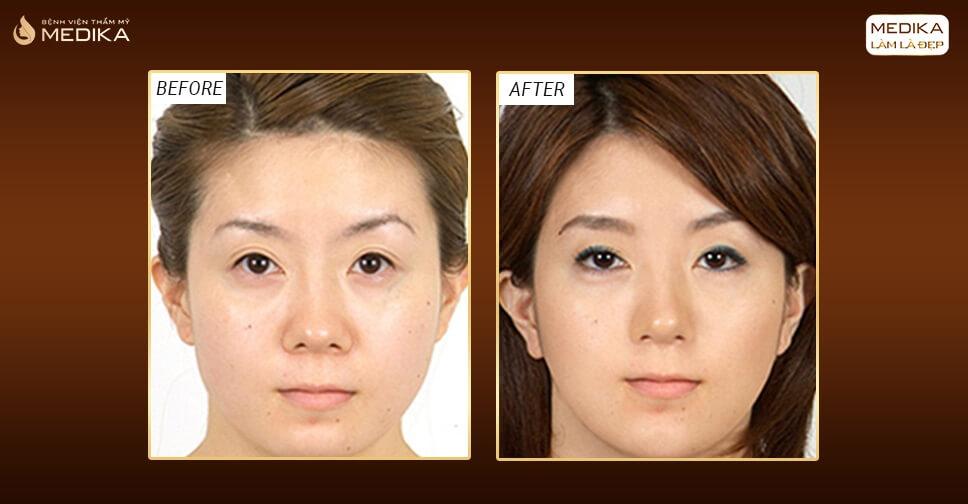 Thu nhỏ đầu mũi có khắc phục được mũi chẻ hay không? - Nangmuislinedep.com.vn