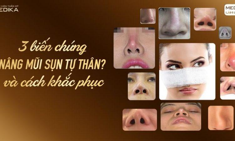 3 biến chứng nâng mũi sụn tự thân và cách khắc phục - Nangmuislinedep.com.vn