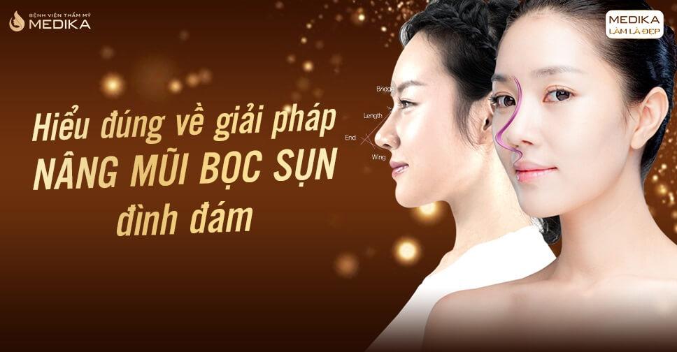 Hiểu đúng về giải pháp nâng mũi bọc sụn đình đám - Nangmuislinedep.com.vn