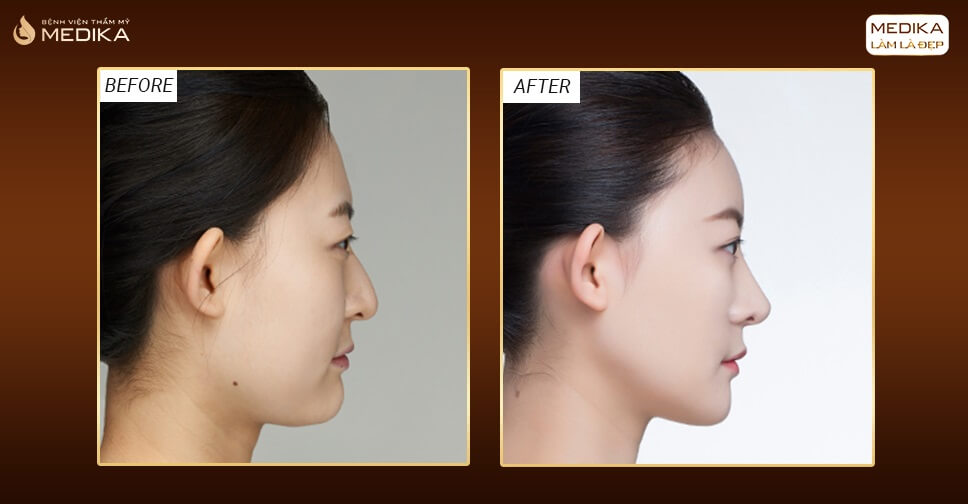Nâng mũi bằng sụn tự thân không đạt kết quả nguyên nhân do đâu? - Nangmuislinedep.com.vn