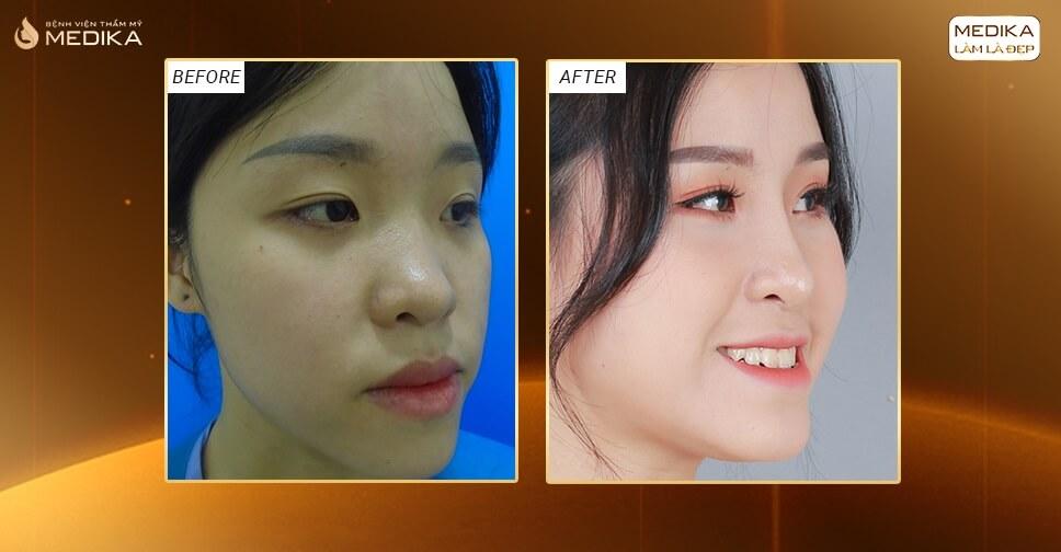 Nâng mũi bọc sụn mang lại dáng mũi sang trọng - Tại Nangmuislinedep.com.vn