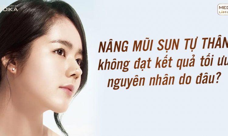 Nâng mũi sụn tự thân không đạt kết quả nguyên nhân do đâu? - Nangmuislinedep.com.vn