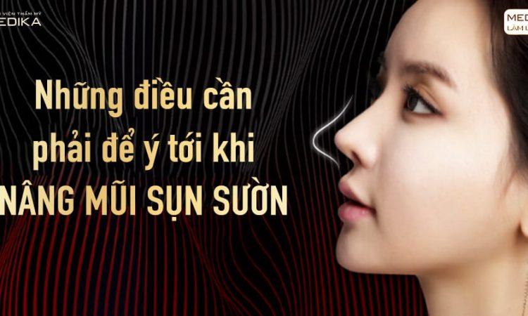 Những điều cần phải để ý tới khi nâng mũi sụn sườn - Ở Nangmuislinedep.com.vn
