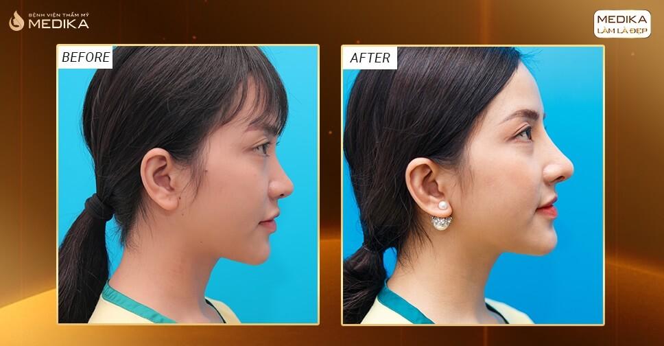 Những điều cần phải để ý tới khi nâng mũi sụn sườn - Tại Nangmuislinedep.com.vn