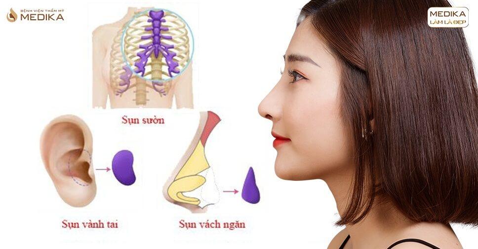 Những loại sụn chuyên gia khuyên dùng nâng mũi sụn tự thân - Nangmuislinedep.com.vn